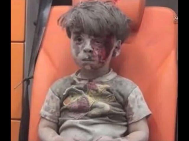 シリアの戦争を通じて心が痛みます 抱きかかえられながら救急車に乗せられた男の子 I am is painful to know this fact